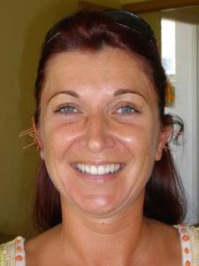 Fülakupunktúrás kezelés